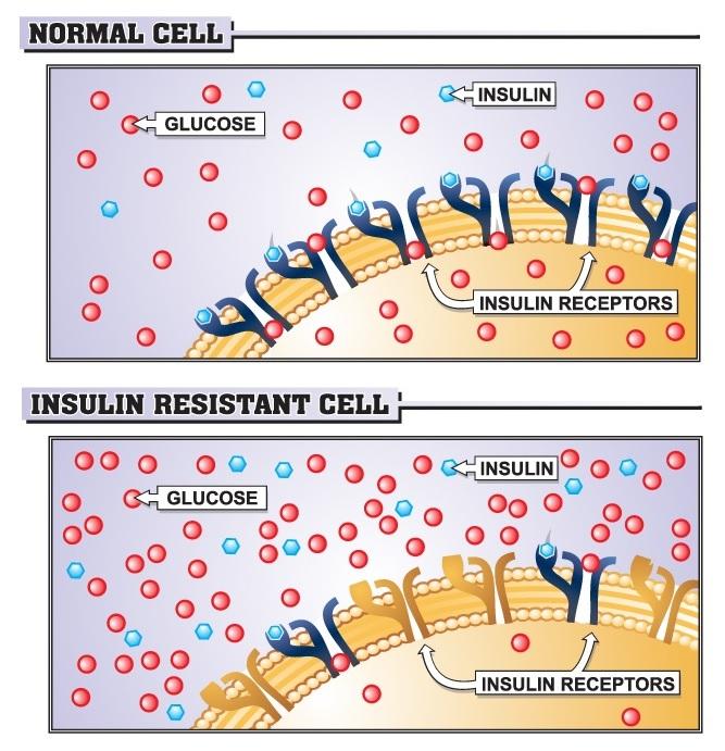 dieta para sindrome metabolica resistencia insulinica pdf