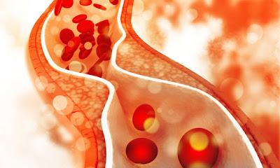 Cholesterol , Heart At Risk