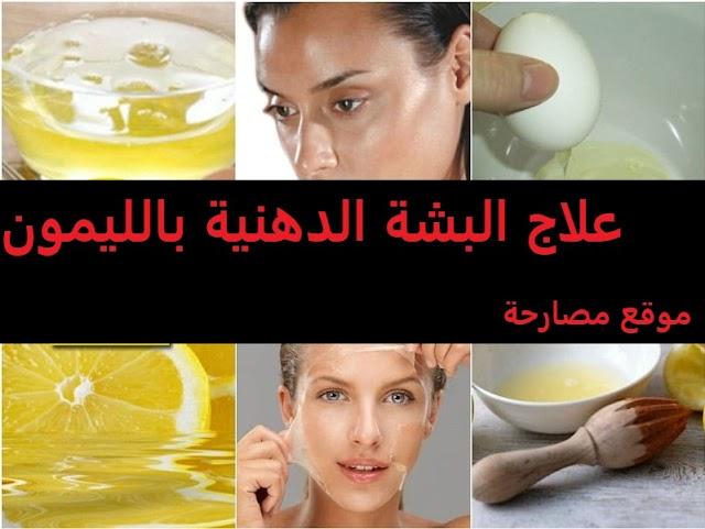 علاج البشرة الدهنية بالليمون