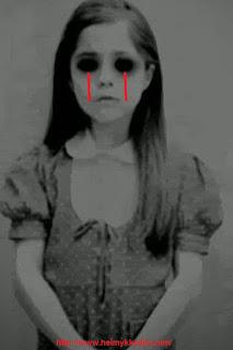 Sering menangis dan rewel