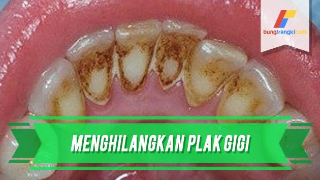 Cara Menghilangkan Plak Gigi dengan Resep Alami Tanpa Bantuan Dokter