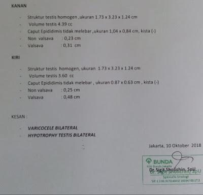 AsthenoTeratozoospermia, Varikokel Bilateral (Sebab varises testis)