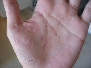 kulit tangan mengelupas