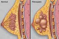 Gambar Kanker Payudara Asli