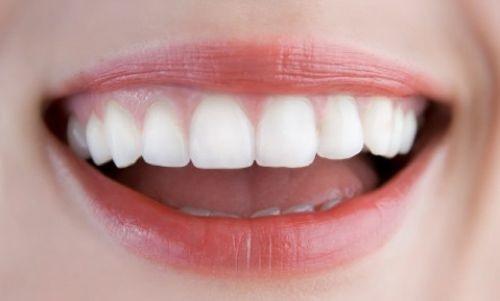 Kết quả hình ảnh cho Nguyên nhân đầu tiên phải kể đến đó răng sứ