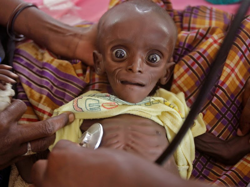 Malnutrisi Pada Anak