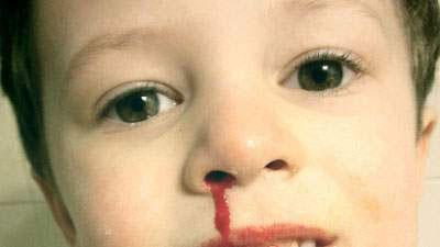 mimisan, epistaksis, pendarahan hidung