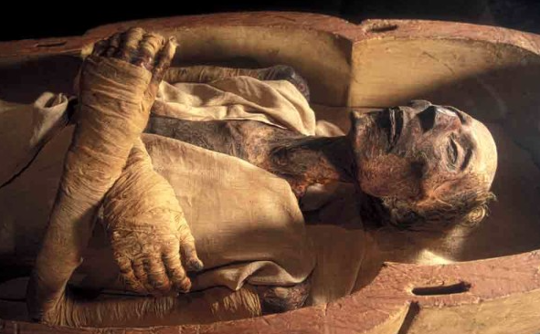 Egyptian Mummy no cancer