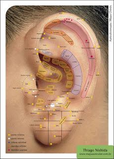 la auriculoterapia