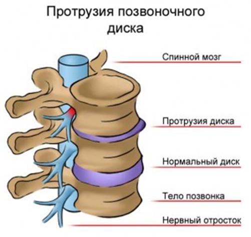 Лечение протрузии в Одессе и протрузия дисков лечение Одесса