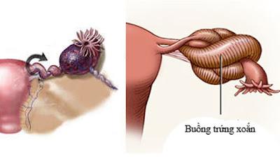 Xoắn buồng trứng nguy hại ra sao và yếu tố nào dẫn đến xoắn buồng trứng-https://benhlynamkhoa115.blogspot.com/