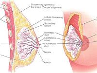 Cara Mengobati Kanker Payudara Akut