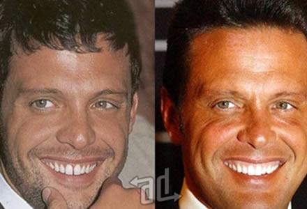 antes y despues de la cirugia de dientes Luis Miguel