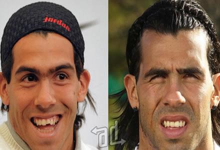 despues de la cirugia de dientes Carlitos Tevez