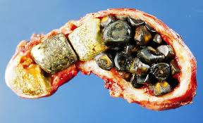 Gallstones;SIDE EFFECTS OF RAPID WEIGHT LOSS