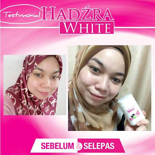 Vitamin C Hadzra White