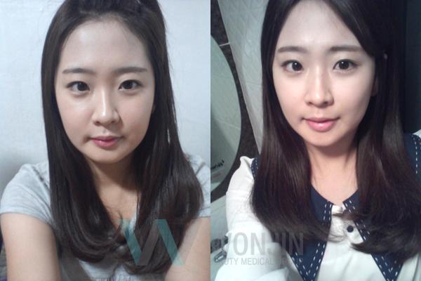 짱이뻐! - I just can't wait to get this Korean Two Jaw Surgery