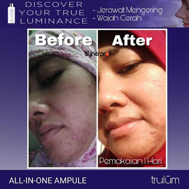 Makin Cantik atau Ganteng Tanpa Harus Ke Dokter Kecantikan di Gayam Sari Kota Semarang