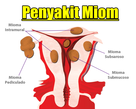 Pengobatan Alternatif Miom