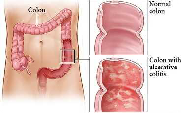ulcerative colitis, natural, cure, ayurveda, herbal