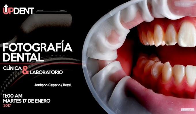 WEBINAR: Fotografía Dental de Clínica y Laboratorio - Jonhson Cesario