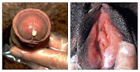 Obat Penyakit Sipilis Raja Singa di Apotik