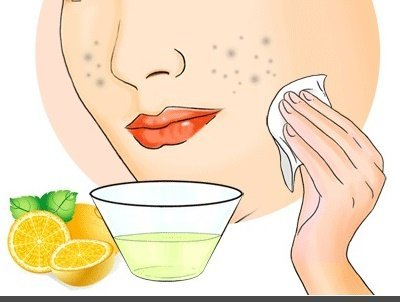 Air Lemon Untuk Menghilangkan Flek Hitam di Wajah