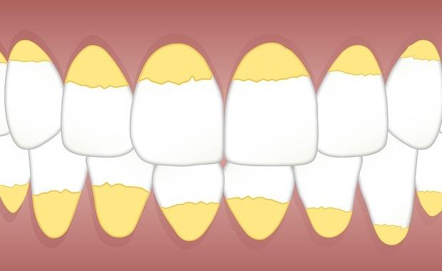 Cara Memutihkan Gigi Secara Alami Dan Permanen Tanpa Efek Samping