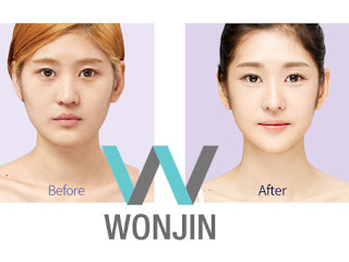 foto sebelum dan sesudah operasi kontur wajah