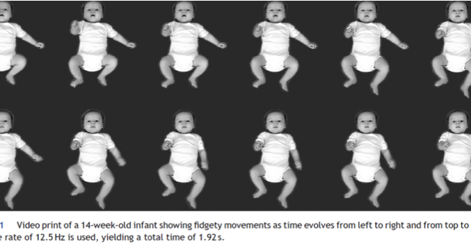 Best Practice Peds Fidgety Movements Tiny In