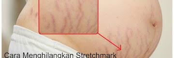 Bekas Stretchmark Setelah Melahirkan ini Ternyata Bisa di Hilangkan Loh Bund ! Ikuti CARA Briliant Berikut Ini !!