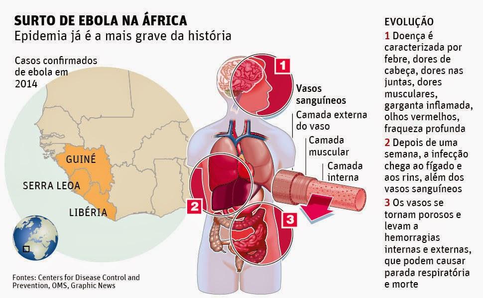 Surto de Ebola na África