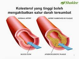 Image result for set jantung shaklee