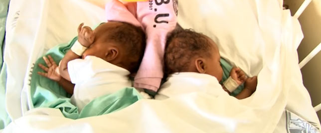 Kenyan doctors carry out first succesful conjoined twins separation surgery in Africa