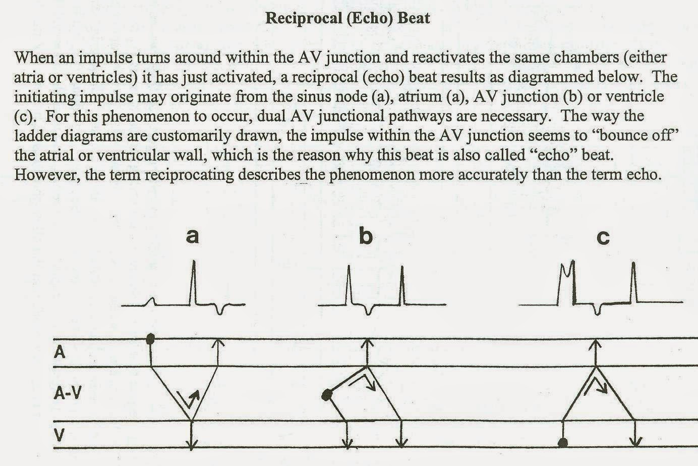 hight resolution of here he explains it in the context of an echo beat first he explains the echo beat then he shows a case of retrograde wenckebach with an echo beat