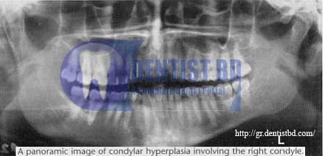 1 Condylar hyperplasia   <stro data-recalc-dims=