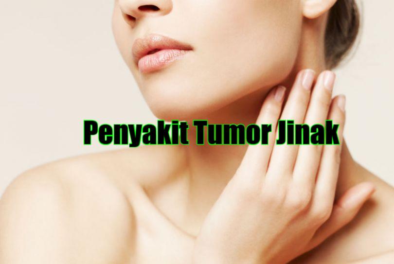 Pengobatan Tradisional Penyakit Tumor Jinak