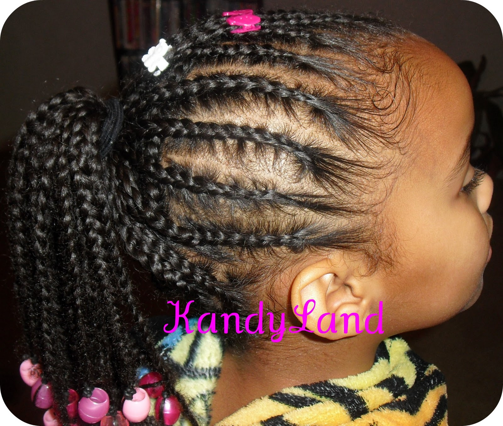 By Making A Part And Braid Going Up Towards The Center Of Her Hair