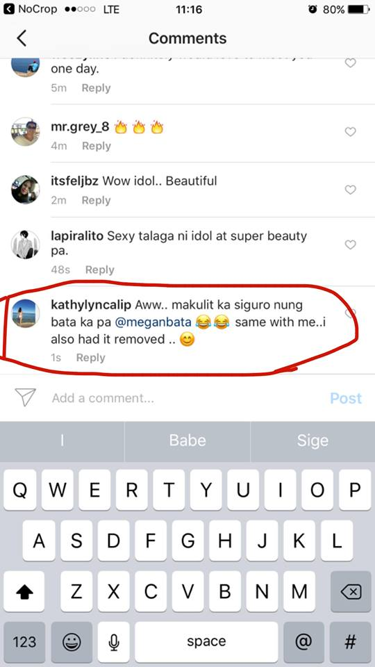 LOOK! Megan Young Has Something on Her Body That Netizens Are Going Crazy About! See it Here!