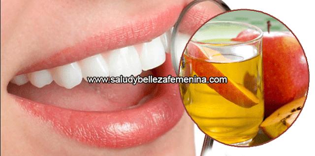 Remedio natural para blanquear tus dientes ràpidamente, el vinagre de manzana  es rico en pectina y facilita purificar la boca y la garganta. Mata las bacterias, remueve manchas de los dientes y además el sarro.