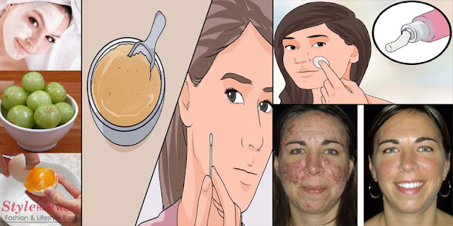 How To Get Rid Of Acne In Just 1 Hour