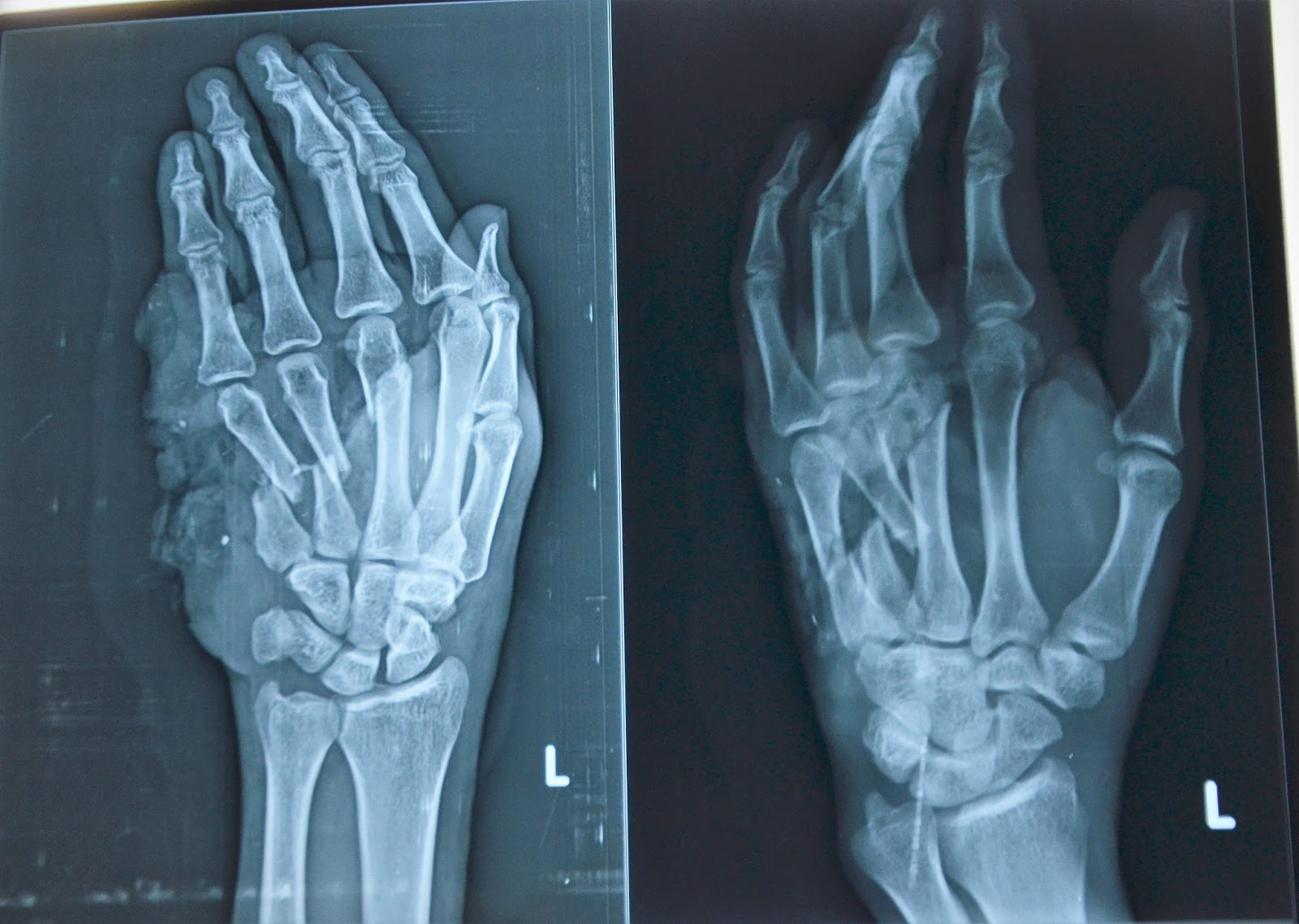 MACHINE INJURY - LEFT PALM WITH MULTIPLE METACARPAL FRACTURES - ALT ...