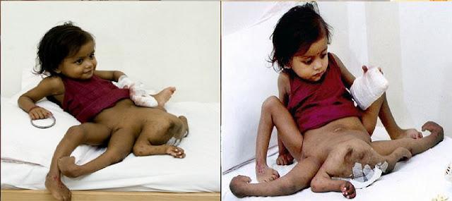 Image result for keajaiban bayi dilahirkan dengan 4 tangan dan 4 kaki