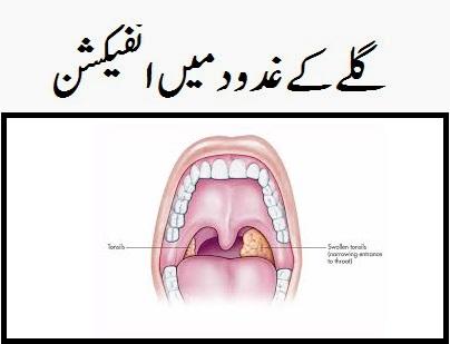 tonsils ka ilaj meaning in urdu
