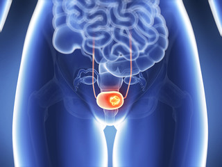 Bowel and bladder cancer prognosis