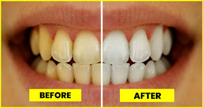 Natural Tips to Make Yellow Teeth to White Top  Top Six Natural Tips To Brand Yellowish Teeth To White