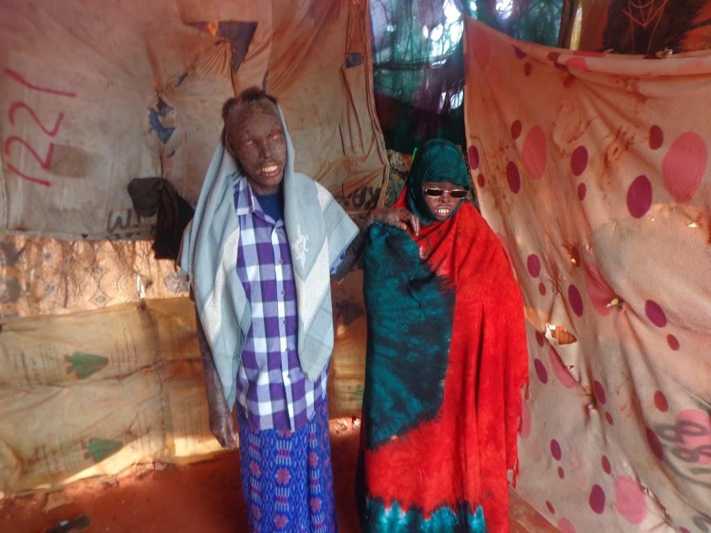 Sawiro: Nin Iyo Haweeney Somali Ah Oo Lagu Arkey Cudur Aan