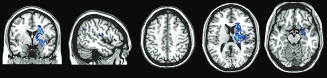 図:左脳のこのあたりの損傷は障害がおおきい