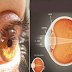This Ingredient Increases Vision by Upto 97%