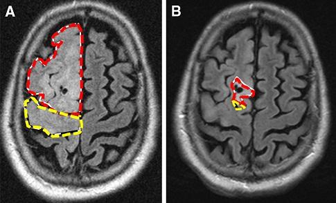 Beyin Tümörü Öldürür Mü